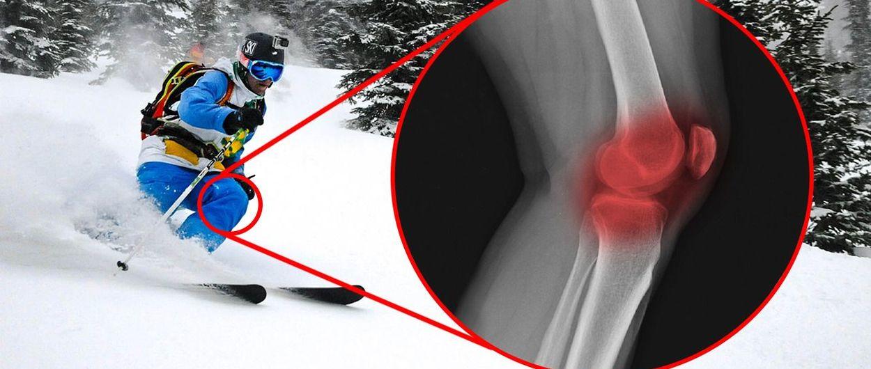 ¿Son los esquís anchos malos para tus rodillas?
