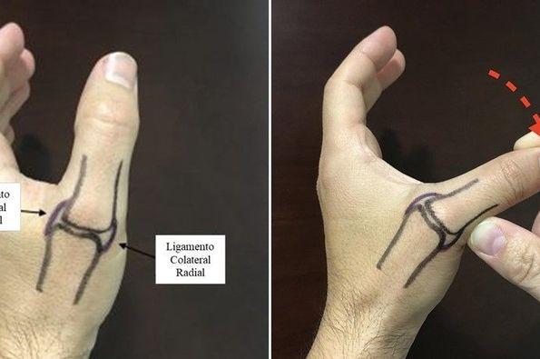 Lesión del pulgar del esquiador