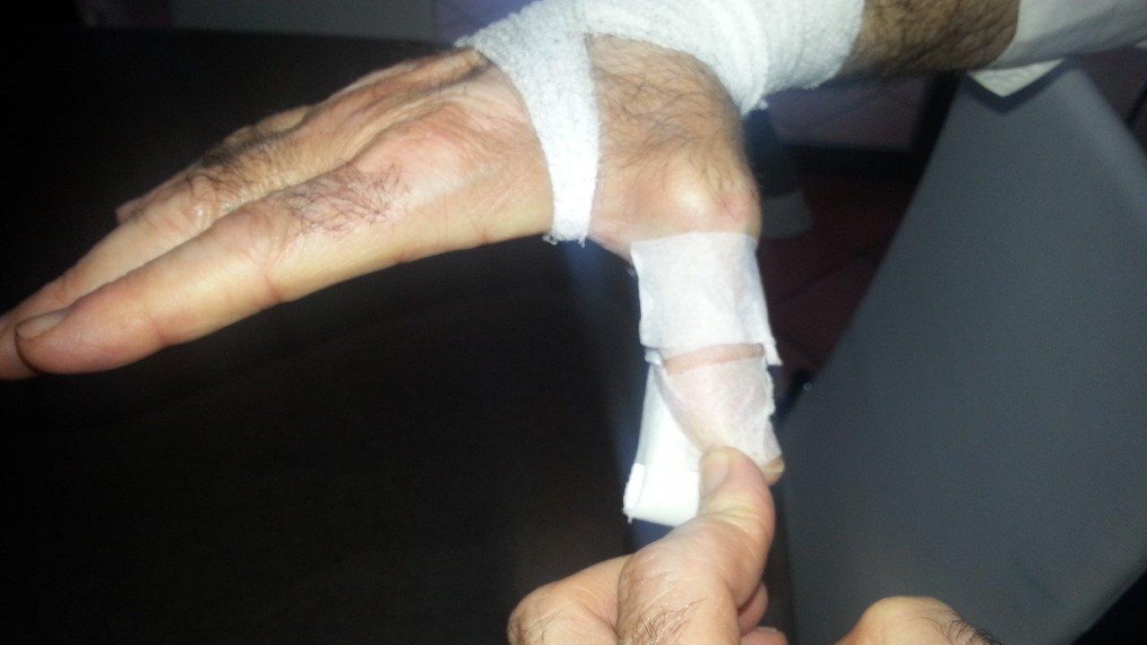 Automasaje para la tendinitis de De Quervain o del pulgar