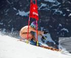 """El esquí está en """"pelotas"""""""