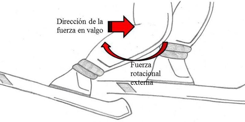 La rodilla del esquiador