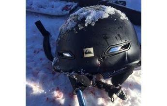 15 puntos en la cabeza  y un codo roto tras pegarle con una tabla de snow